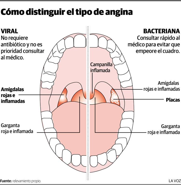 Maneras de distinguir la angina bacteriana